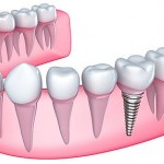 Dental Implants Waco Texas