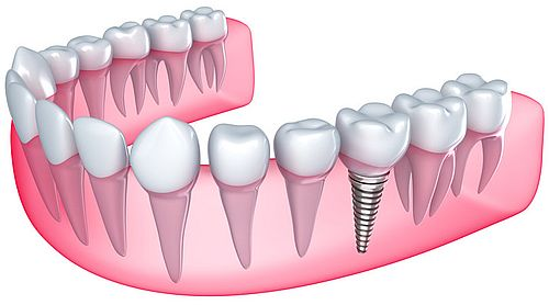 Dental Implants in Waco
