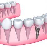Dental Implants Waco Texas